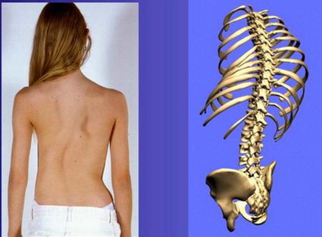 Яким є стан хірургії хребта на Харківщині: наукові досягнення, патології і статистика