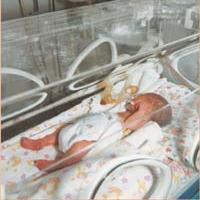 """Дніпропетровщина: завдяки благодійному фонду """"Україна 3000"""" у малюків з вкрай малою вагою буде шанс на життя"""