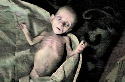 Батьки-монстри довели дитину до стану мумії (Доповнено, Фото)
