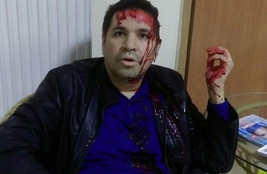 Анатолія Родзинського, кандидата на пост міського голови Харкова, побили вночі (фото)