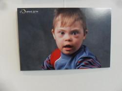 """""""Сонячні діти"""" - проект, що робить нас ближчими до дітей з синдромом Дауна"""